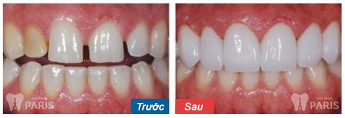 KH bọc sứ và làm veneer cho răng thưa tại nha khoa Paris. Lưu ý hiệu quả phụ thuộc từng trường hợp cụ thể.