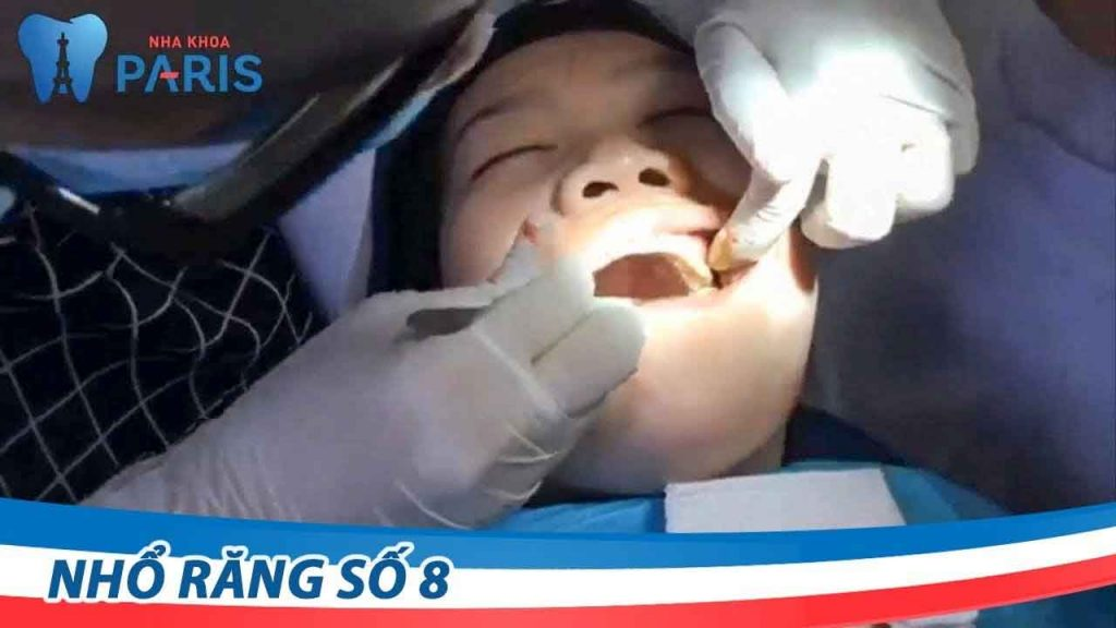Cận cảnh quy trình nhổ răng số 8 bị sâu