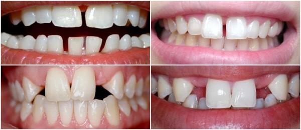 Những tình trạng răng thưa phổ biến hiện nay