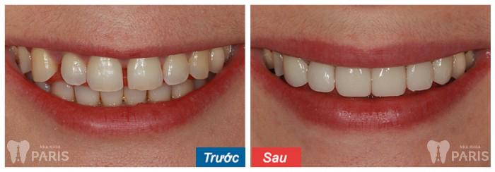 KH trám răng thưa tại nha khoa Paris. Lưu ý hiệu quả phụ thuộc từng trường hợp cụ thể.