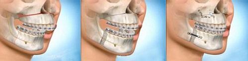 Tại sao có đến 70% các ca sửa răng vổ hô hiện nay thất bại? 2