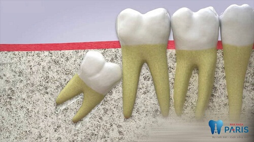 khi nào nên nhổ răng khôn