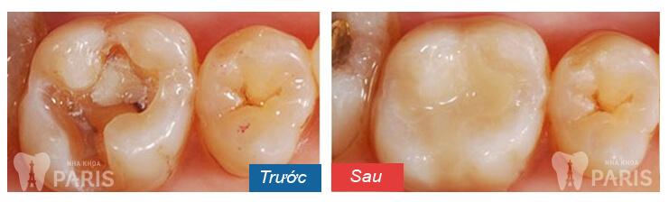 Trám răng có đau không và hướng khắc phục hiệu quả