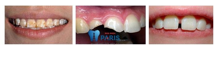 Răng sứ Nano Shining 5S phục hình răng xấu hỏng đẹp tự nhiên 2