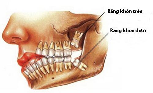 Mọc răng khôn đau trong bao lâu? Tư vấn cách giảm đau hiệu quả 2
