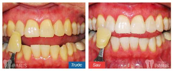 Bọc răng sứ mất bao lâu?? Quy trình bọc sứ NHANH - GỌN!! 2