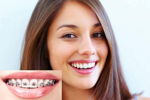 Niềng răng giá bao nhiêu tiền là hợp lý?