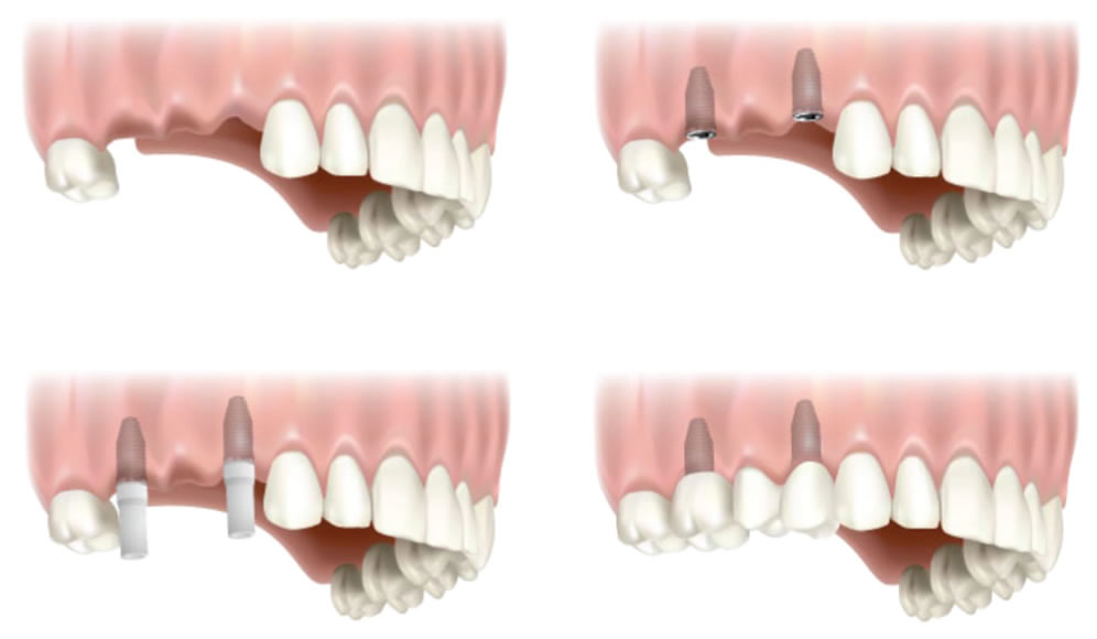two-tooth-implant