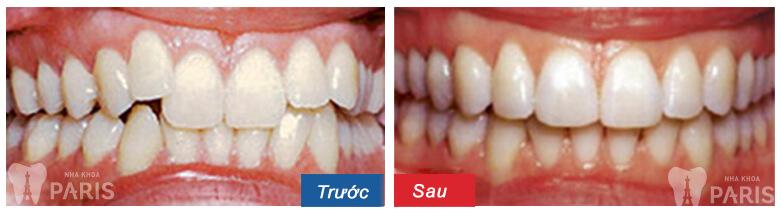 """Niềng răng không mắc cài: """"Đeo như không đeo, tự tin giao tiếp"""" 8"""