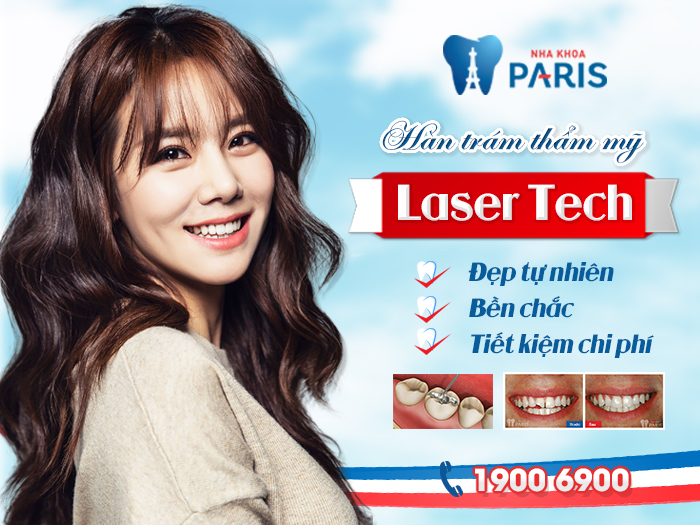 Trám răng thẩm mỹ Laser Tech bền chắc tự nhiên