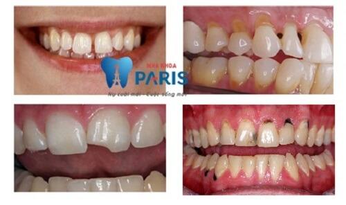 Trám răng thẩm mỹ Laser Tech 2
