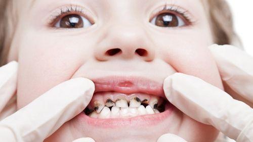 Trẻ bị sâu răng hàm phải làm gì, có nên nhổ không? 1