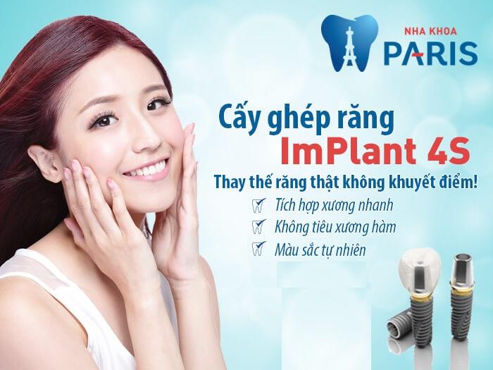 Địa chỉ trồng răng ở đâu tốt và an toàn uy tín tại Hà Nội 6
