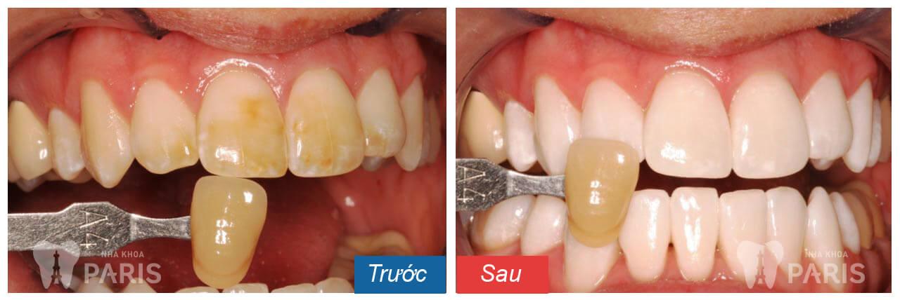 Giá tẩy trắng răng là bao nhiêu