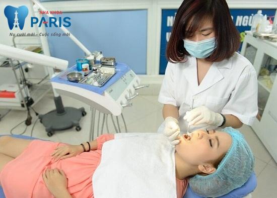 quy trình lấy cao răng