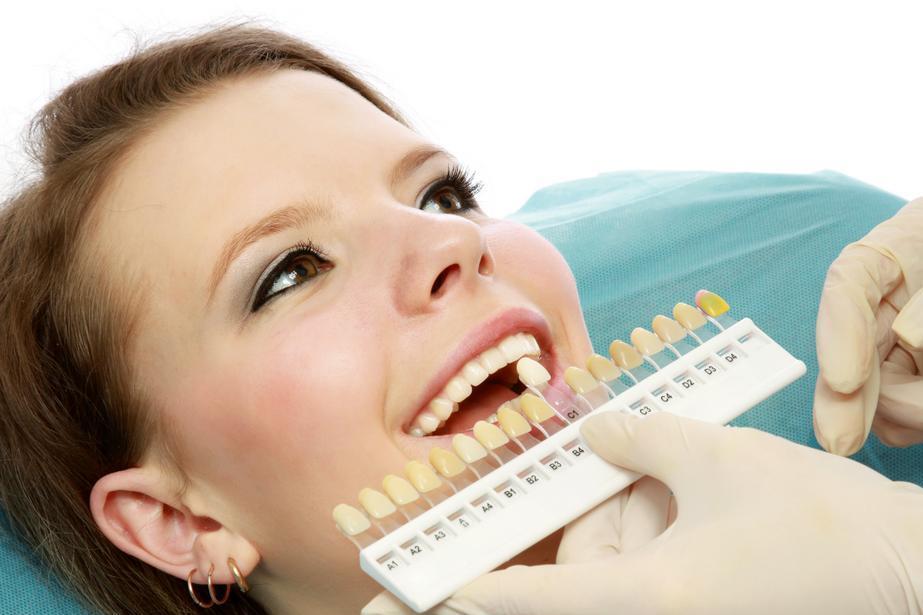 Tẩy trắng răng244