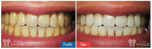 """Tẩy trắng răng Laser Whitening - Trắng gấp """" 8 lần"""" - CAM KẾT an toàn 7"""