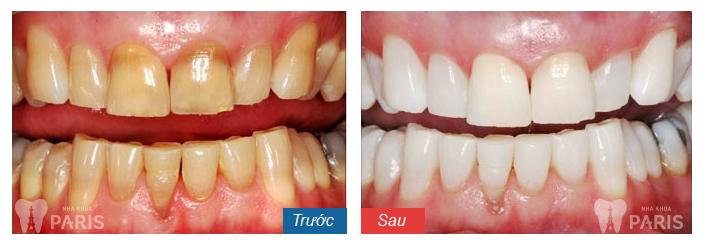 """Tẩy trắng răng Laser Whitening - Trắng gấp """" 8 lần"""" - CAM KẾT an toàn 6"""