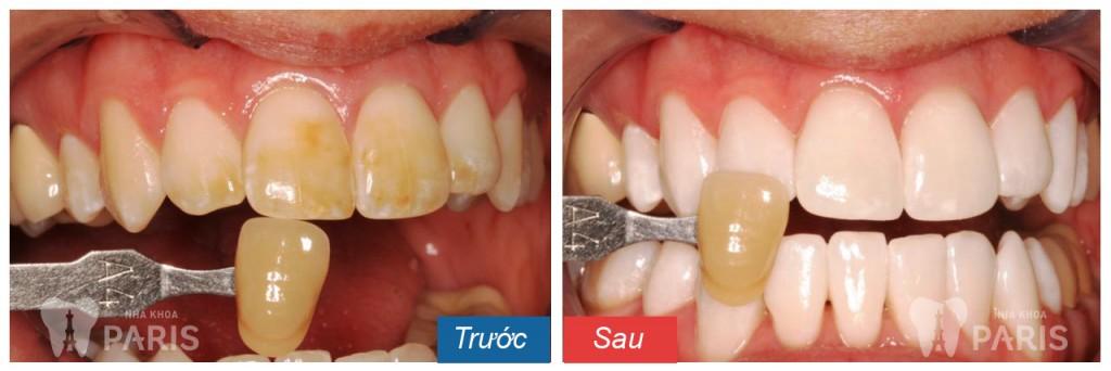 """Tẩy trắng răng Laser Whitening - Trắng gấp """" 8 lần"""" - CAM KẾT an toàn 5"""