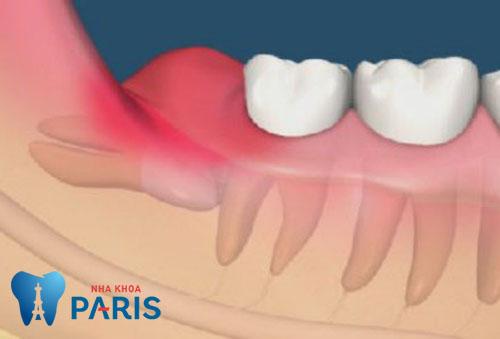 Nên làm gì khi mọc răng khôn để giảm đau hiệu quả? 2