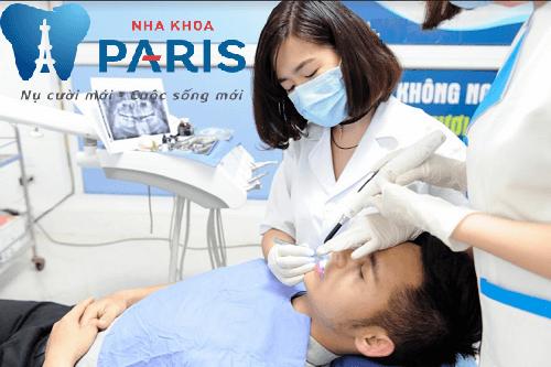 6 cách lấy cao răng tại nhà an toàn và hiệu quả nhất 2017 6