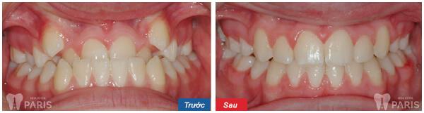 Có cách nào chữa răng móm nhanh không? 2