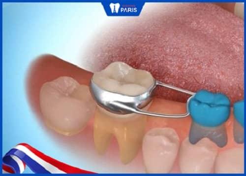 răng mọc thưa ở trẻ em phải làm thế nào