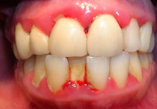 Bệnh viêm chân răng và các cách hỗ trợ điều trị hiệu quả nhất 2017 2