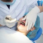 Giá nhổ răng khôn bao nhiêu tiền là chuẩn nhất 2018?
