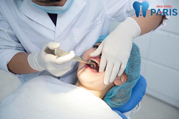 nhỏ răng số 8 hàm trên có nguy hiểm không