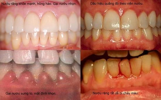 Tổng hợp nguyên nhân gây đau nhức răng và cách hỗ trợ điều trị 1