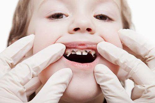 Tổng hợp nguyên nhân gây đau nhức răng và cách hỗ trợ điều trị 2