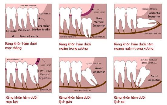 Tổng hợp nguyên nhân gây đau nhức răng và cách hỗ trợ điều trị 3
