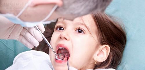 Cách nhổ răng sữa cho trẻ tại nhà