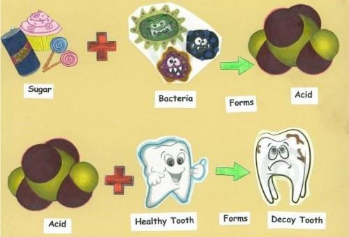 Răng hàm bị sâu nặng phải làm sao để khắc phục hiệu quả? 2