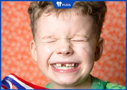 răng thưa ở bé do mọc thiếu răng
