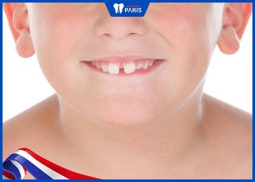 răng thưa ở trẻ em
