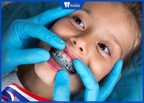 răng vĩnh viễn ở trẻ mọc thưa