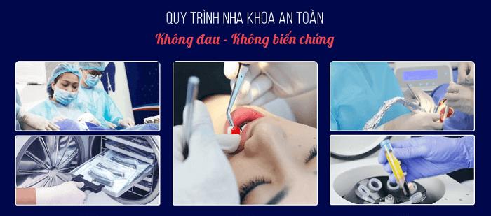 Quy trình làm răng an toàn, không biến chứng tại Paris