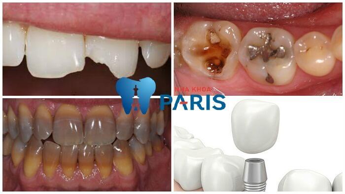 Bọc răng sứ thẩm mỹ phương pháp làm đẹp răng an toàn và hiệu quả 2