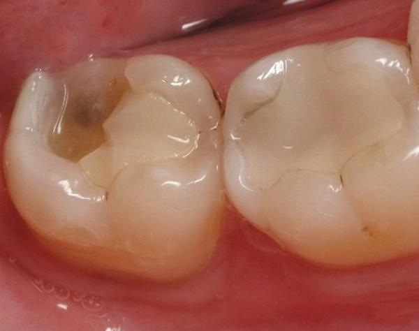 Quy trình hàn răng sâu đảm bảo tiêu chuẩn theo 5 bước