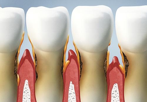 Biểu hiện và cách chữa trị bệnh viêm chân răng