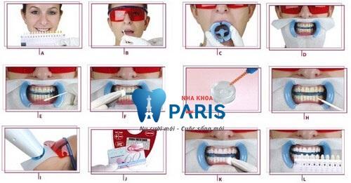 Các bước thực hiện tẩy trắng răng bằng Laser Whitening theo tiêu chuẩn Quốc tế