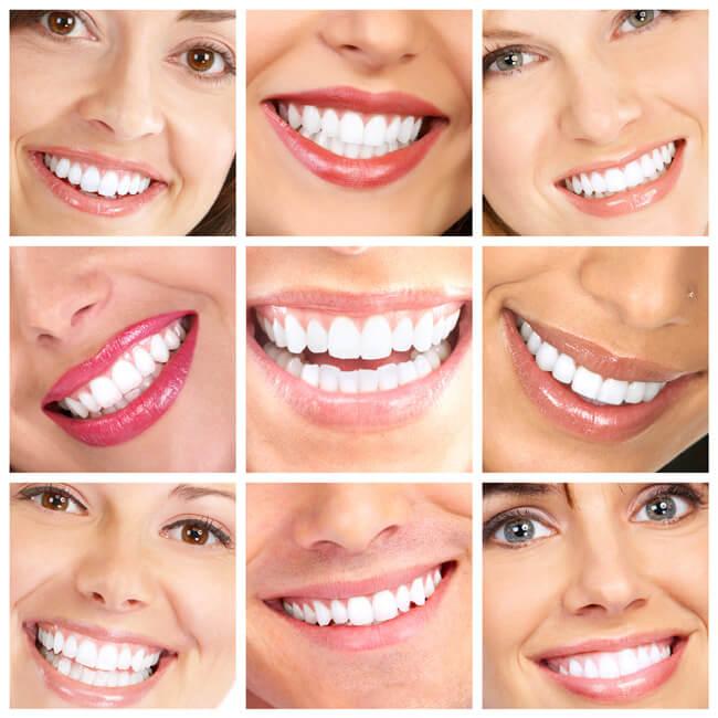 Công nghệ Laser Whitening đem lại cho bạn kết quả tẩy trắng răng tối ưu