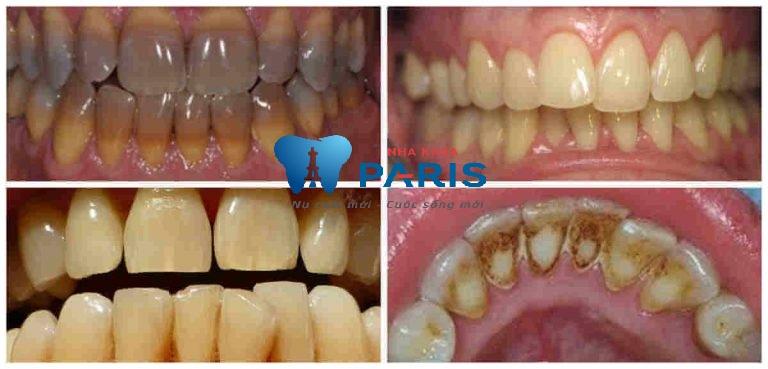 """Tẩy trắng răng Laser Whitening - Trắng gấp """" 8 lần"""" - CAM KẾT an toàn 2"""