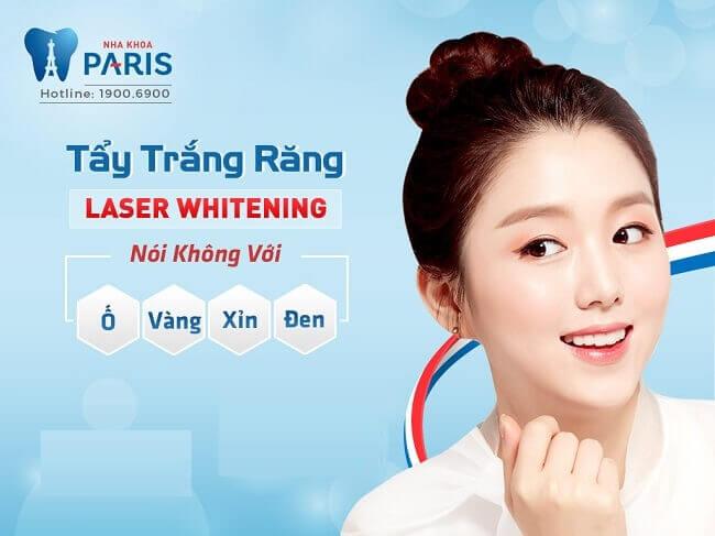 Tẩy trắng răng laser whitening - giải pháp khắc phục răng ố vàng, xỉn màu