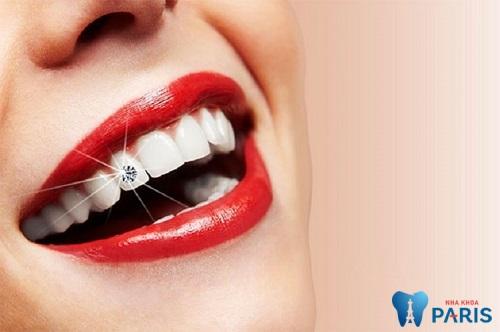 Cho nụ cười tỏa sáng tự tin với công nghệ Răng đính kim cương E.Las 1