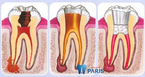 Đau răng hàm dưới có thể do viêm tủy
