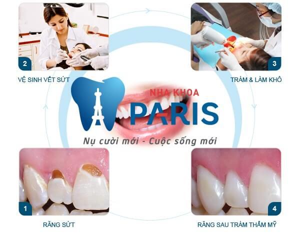 Giải pháp tối ưu khắc phục răng khiếm khuyết sứt, mẻ, hở kẽ 7
