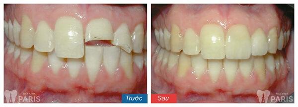 Giải pháp tối ưu khắc phục răng khiếm khuyết sứt, mẻ, hở kẽ 6